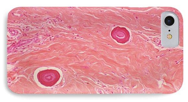 Juvenile Fibroma IPhone Case