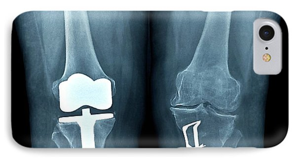 Knees After Corrective Surgery IPhone Case