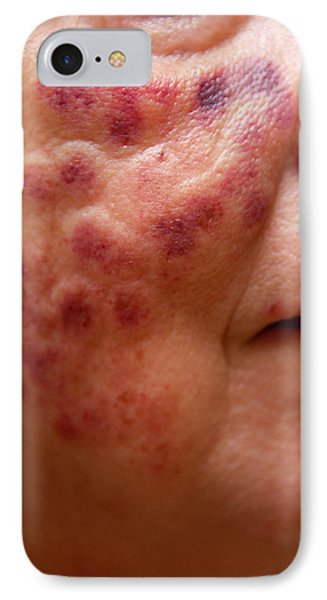 Laser Treatment For Age Spots IPhone Case