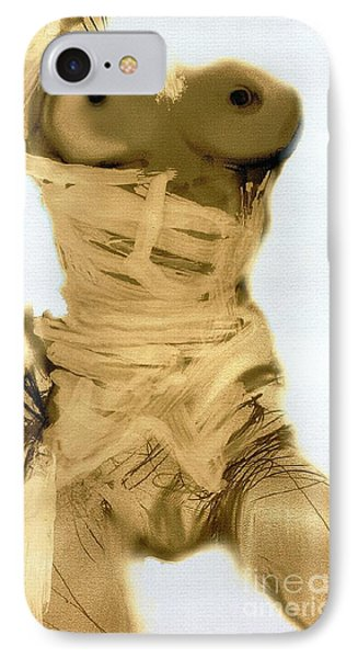 Little Warrior - Female Nude Phone Case by Carolyn Weltman