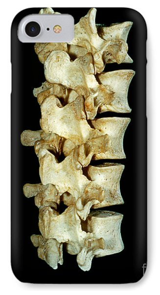 Lumbar Vertebrae Phone Case by VideoSurgery
