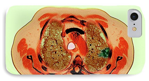 Lung Cancer IPhone Case by Dr P. Marazzi