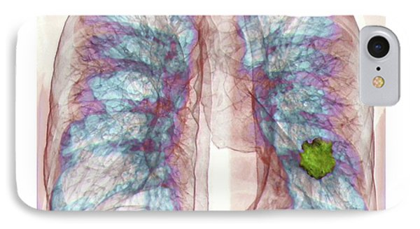 Lung Cancer IPhone Case by Zephyr