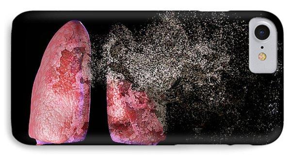 Lung Disease IPhone Case by Christian Darkin
