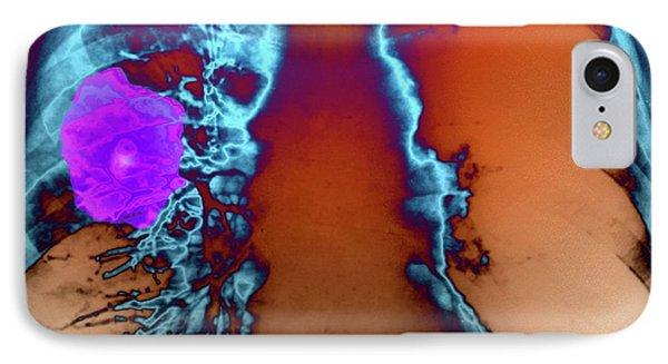 Lung Tumour IPhone Case