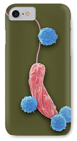 Lymphocytes And Protozoa IPhone Case