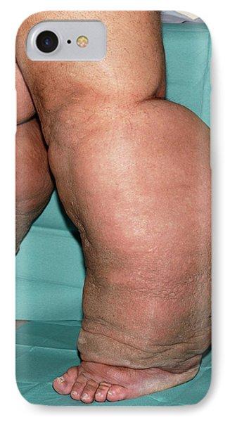 Lymphoedema Of The Legs IPhone Case
