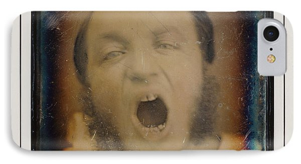 Man With Open Mouth Unknown Maker, French About 1852 IPhone Case by Litz Collection