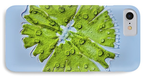 Micrasterias Sp. Green Alga IPhone Case by Gerd Guenther