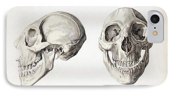 Microcephalic Skull Flores Man Zika Virus IPhone Case by Paul D Stewart