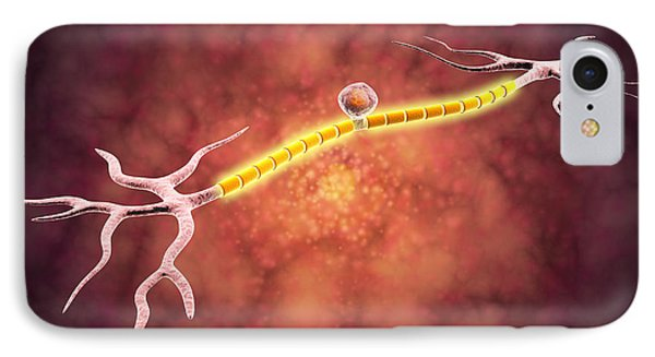 Microscopic View Of A Unipolar Neuron Phone Case by Stocktrek Images