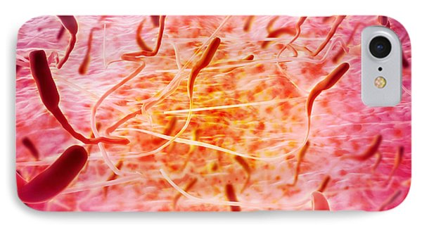 Microscopic View Of Sperm Phone Case by Stocktrek Images