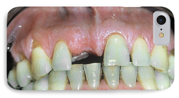 Missing Front Tooth IPhone Case by Dr. M. Gaillard/cnri