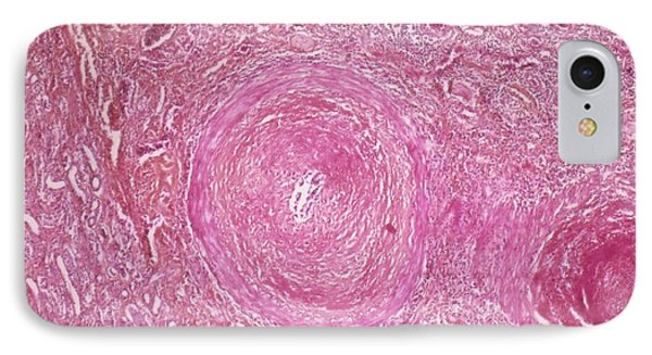 Nephroangiosclerosis IPhone Case
