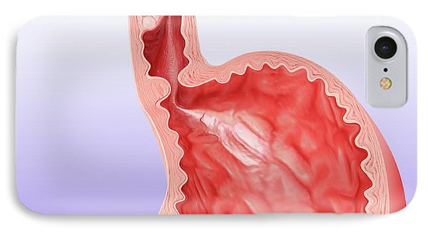 Oesophageal Cancer IPhone Case by Pixologicstudio