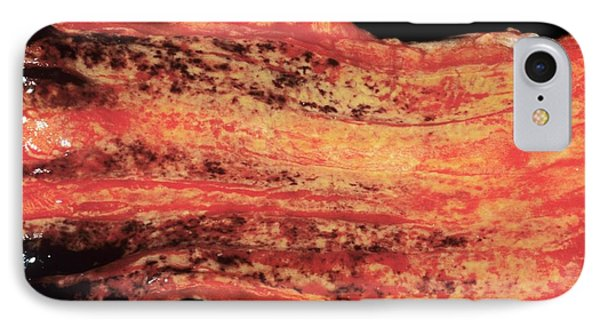 Oesophageal Varices IPhone Case by Cnri