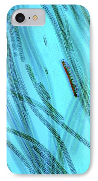Oscillatoria Cyanobacteria IPhone Case by Marek Mis