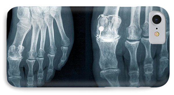 Osteoarthritis Of The Foot IPhone Case by Zephyr