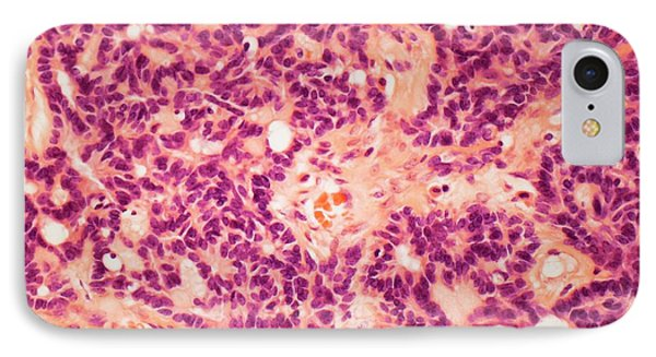 Ovarian Tumour IPhone Case by Steve Gschmeissner