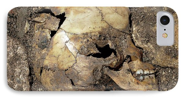 Partially Excavated Human Fossil IPhone Case by Javier Trueba/msf