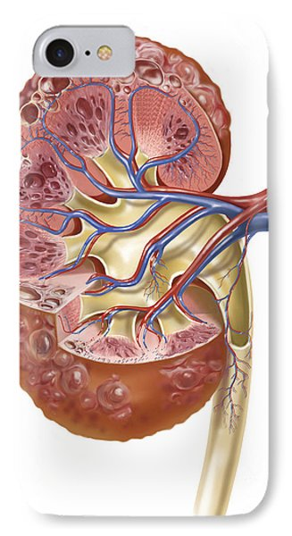 Polycystic Kidney IPhone Case by TriFocal Communications