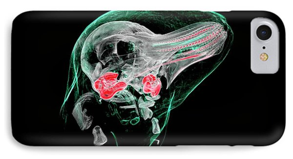 Porpoise Foetus IPhone Case by Rebecca Summerfield/natural History Museum, London