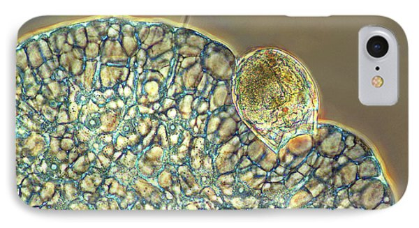 Protozoan Ingesting Rotifer IPhone Case by Marek Mis