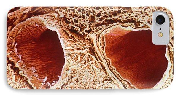 Pulmonary Vein And Artery IPhone Case