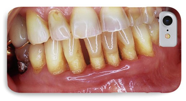 Receding Gums In Gum Disease IPhone Case by Dr. M. Gaillard/cnri