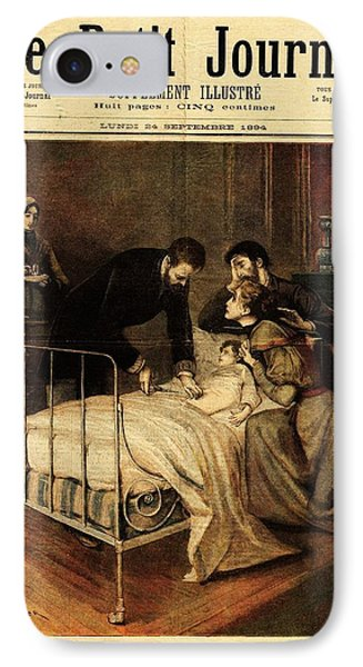 Roux Treating Croup IPhone Case by National Library Of Medicine