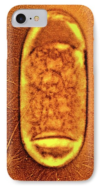 Salmonella Typhimurium Bacterium IPhone Case by Peter Cooke, Lenier Tucker/us Department Of Agriculture