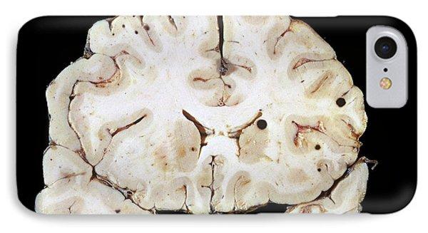 Secondary Brain Cancer IPhone Case by Pr. R. Abelanet - Cnri