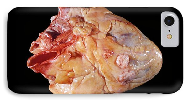Secondary Heart Cancer IPhone Case by Pr. M. Forest - Cnri