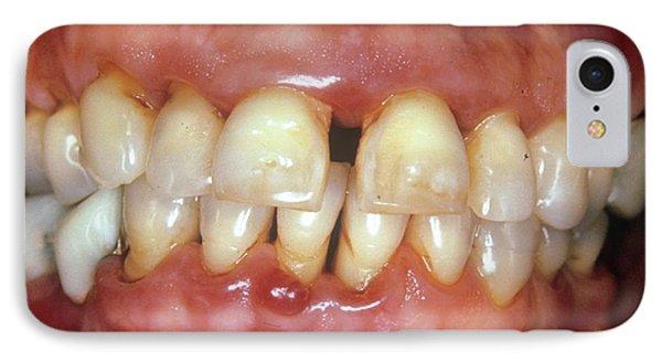 Severe Gum Disease IPhone Case by Dr. W. Green/cnri