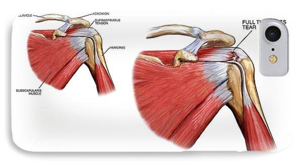Shoulder Tendon Injury IPhone Case by John T. Alesi
