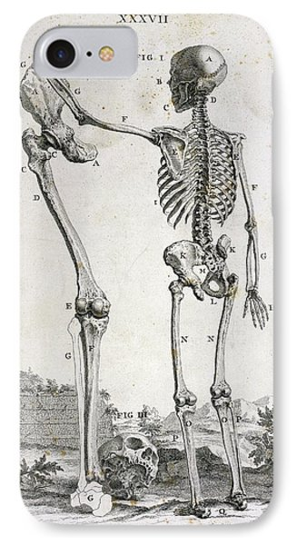Skeleton And Giant's Leg IPhone Case