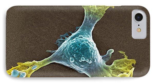 Skin Cancer Cell Sem Phone Case by Spl