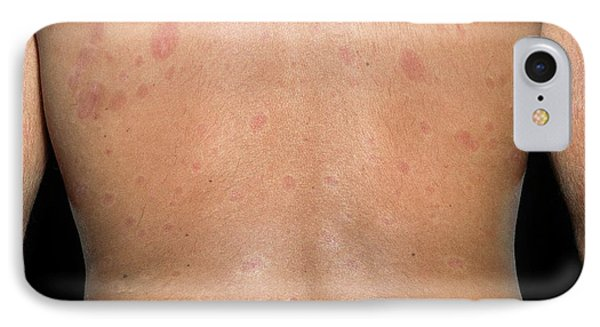 Skin Plaques In Systemic Sclerosis IPhone Case
