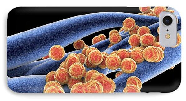 Staphylococcus Aureus Mrsa Bacteria Phone Case by Spl