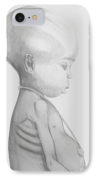 IPhone Case featuring the drawing Starved African Girl by Justin Moore