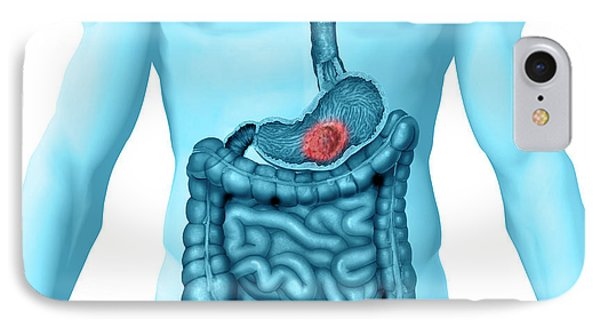 Stomach Cancer IPhone Case by Carol & Mike Werner
