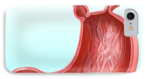 Stomach With Hernia IPhone Case by Pixologicstudio