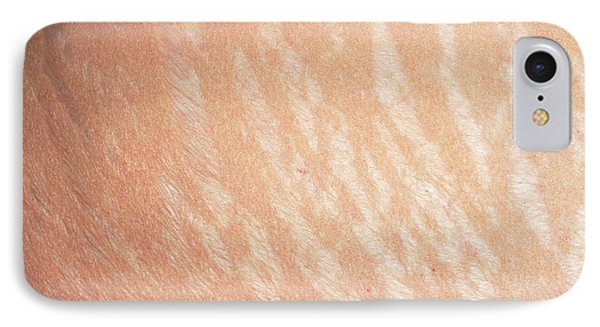 Stretch Marks IPhone Case by Dr P. Marazzi