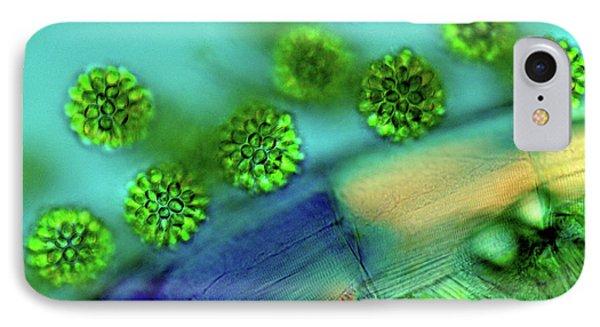 Synurid Algae IPhone Case