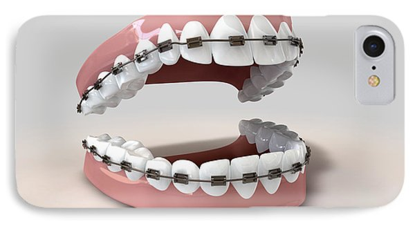 Teeth Fitted With Braces Phone Case by Allan Swart
