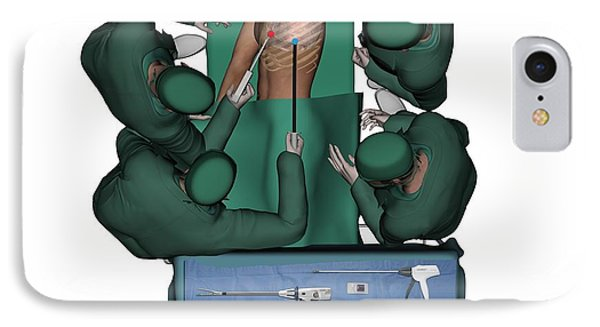 Thorascopic Surgery, Artwork IPhone Case by D & L Graphics