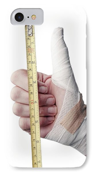Thumb Injury IPhone Case by Arno Massee