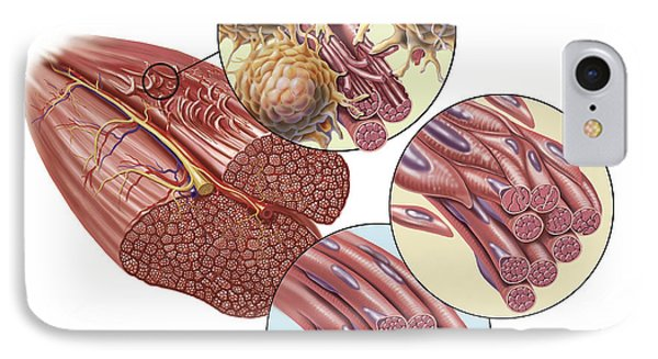 Torn Muscle Fibers With Healing Stages IPhone Case by TriFocal Communications