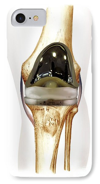 Total Knee Replacement, Artwork IPhone Case