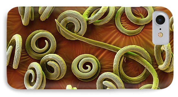 Trichinella Spiralis IPhone Case